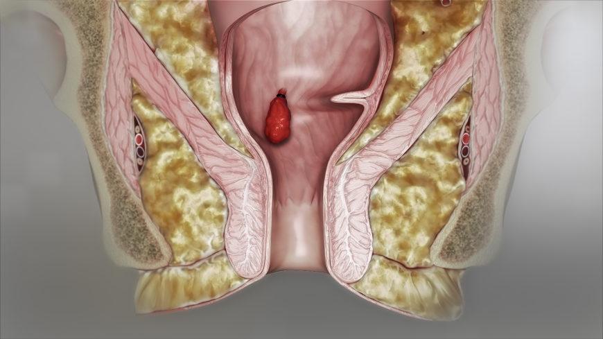 Hình ảnh bệnh trĩ nội và trĩ ngoại qua từng cấp độ